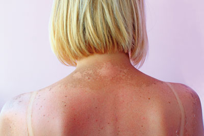 Blemish Removal - Laser Hair Removal & Aesthetic Skin Clinic, York